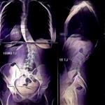 Ballarat Spinal Health Full Spine XRays